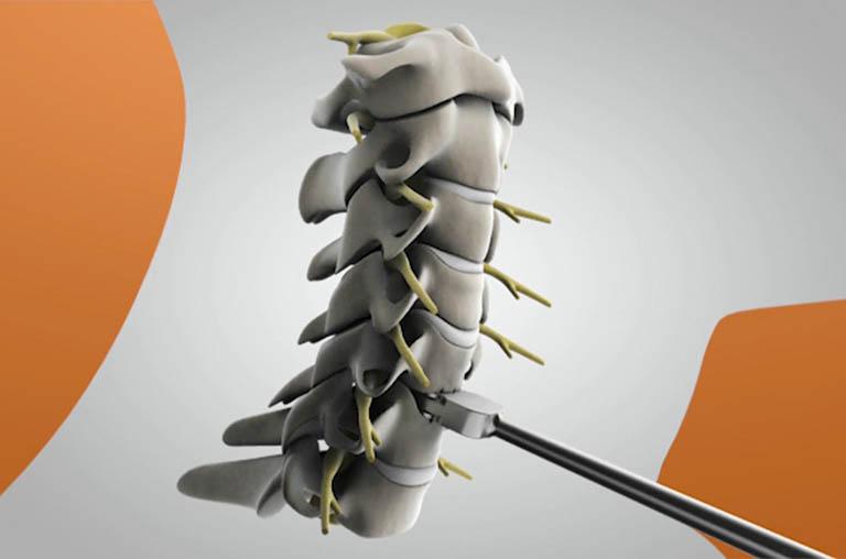 Những điều cần lưu ý khi phẫu thuật thay đĩa đệm nhân tạo