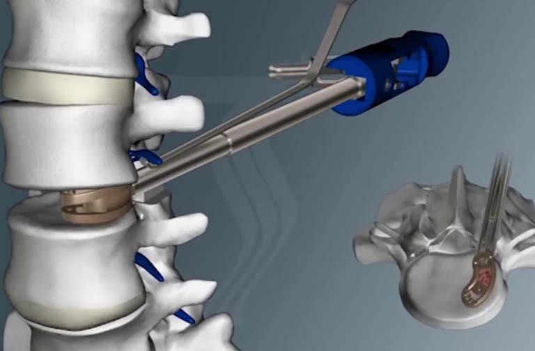 Đĩa đệm nhân tạo là gì? Có nên phẫu thuật thay đĩa đệm