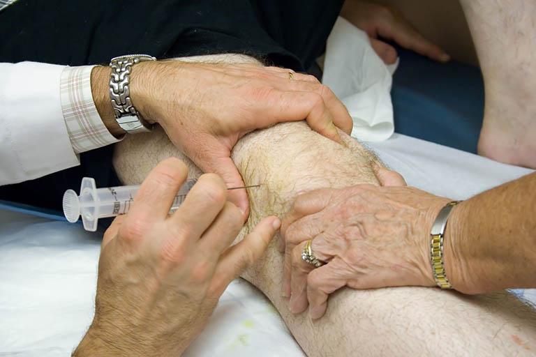 Cách điều trị thoái hóa khớp gối bằng chất nhờn