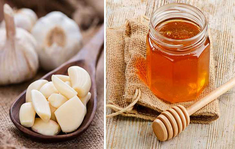Chữa viêm xoang bằng tỏi và mật ong an toàn, dễ dùng