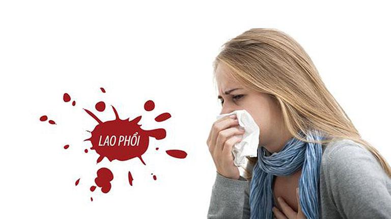 Ho nhiều về đêm là triệu chứng thường gặp của bệnh lao