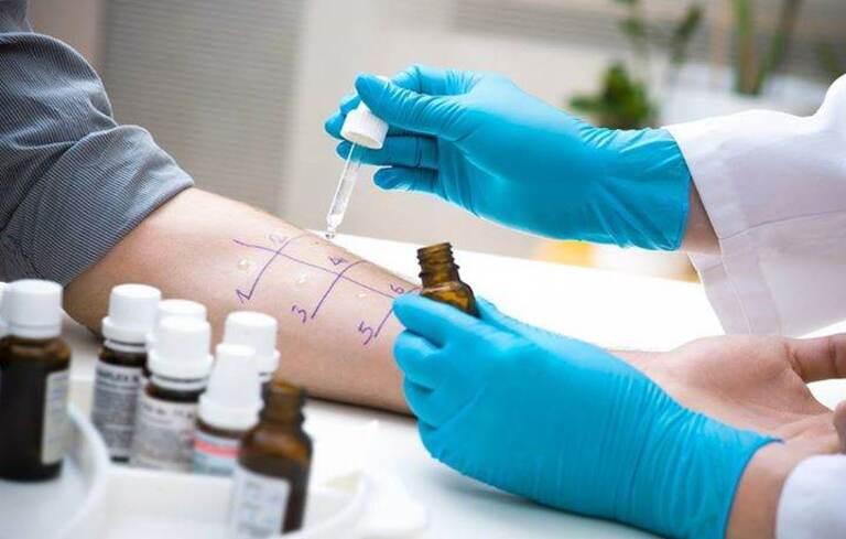 Liệu pháp miễn dịch điều trị viêm mũi dị ứng ở tình trạng mãn tính