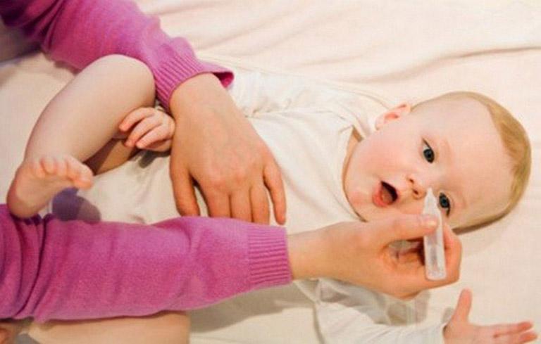 Cách trị sổ mũi tốt nhất cho bé là mẹ thường xuyên rửa mũi cho con