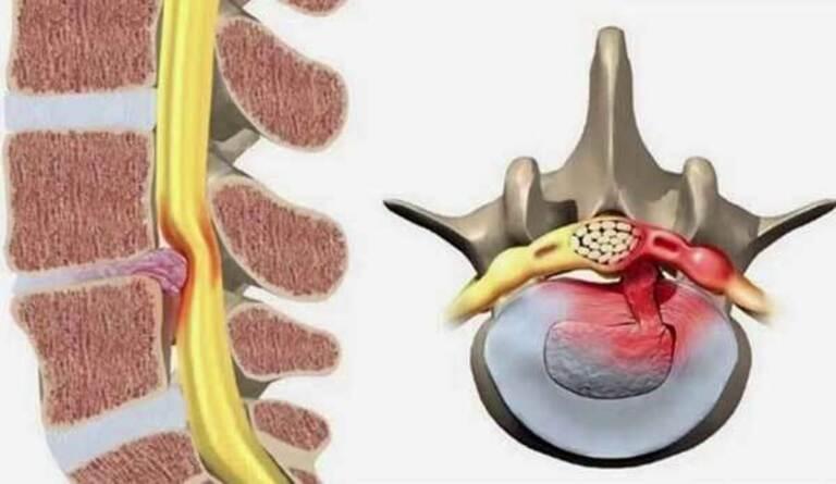 Trường hợp nặng hoặc điều trị nội khoa không hiệu quả sẽ cần đến mổ thoát vị đĩa đệm