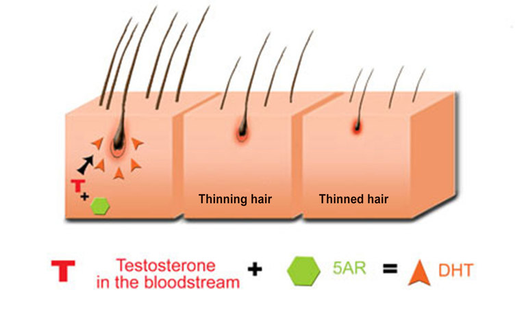 Không có bằng chứng cho thấy DHT liên quan đến tình trạng tóc bạc sớm