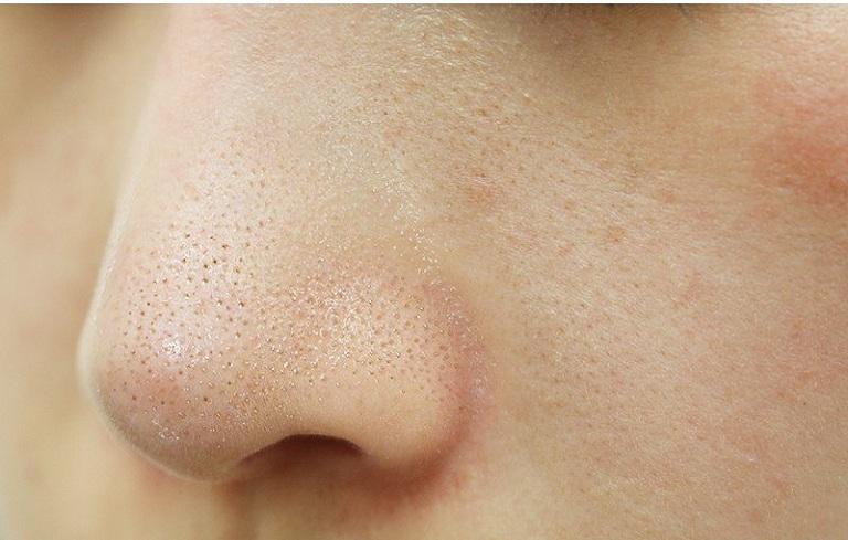 Mụn cám khiến làn da bị sần sùi không được láng mịn