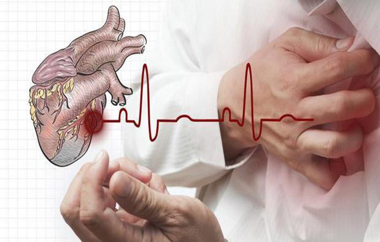 Những người bị bệnh tim mạch không nên dùng tỏi chữa viêm xoang