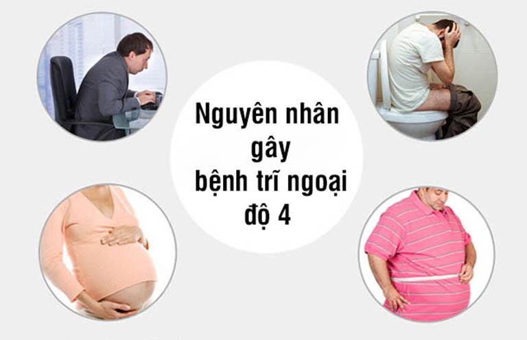 Một số nguyên nhân hình gây ra bệnh trĩ ngoại độ 4