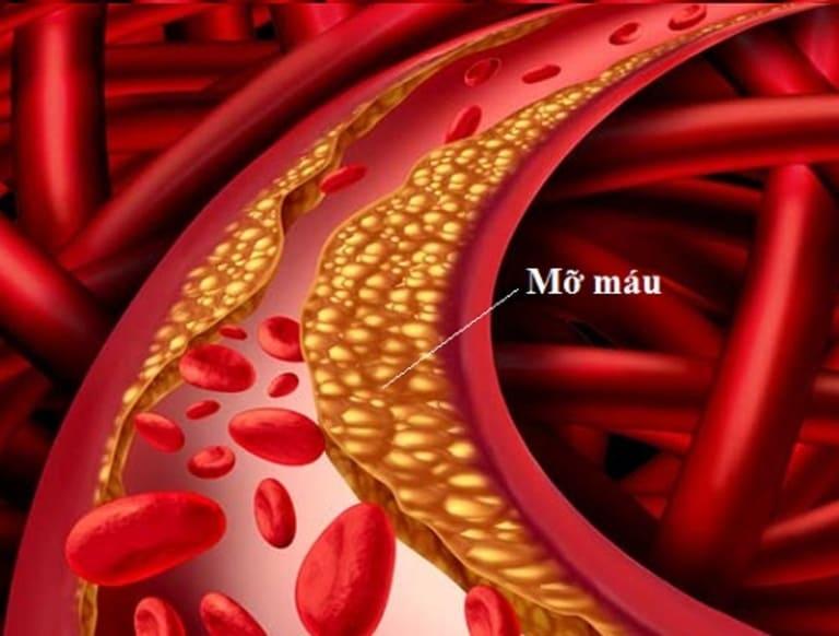Liệt dương liên quan nhiều đến quá trình lưu thông máu đến dương vật