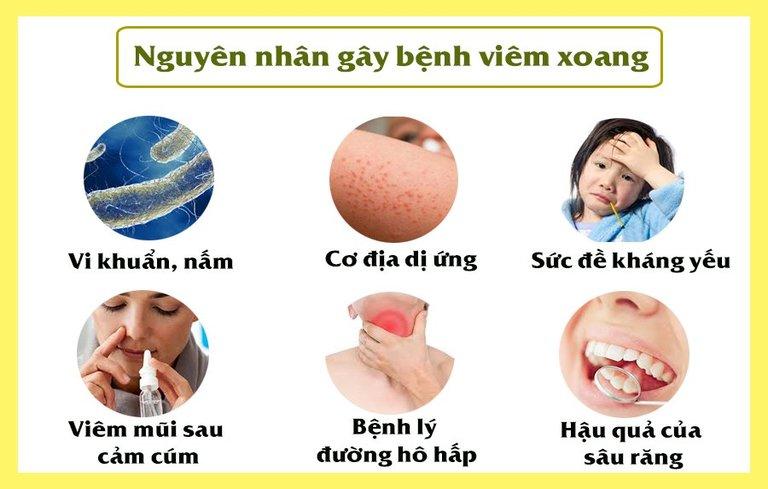 Có nhiều nguyên nhân gây ra tình trạng bệnh viêm xoang cấp