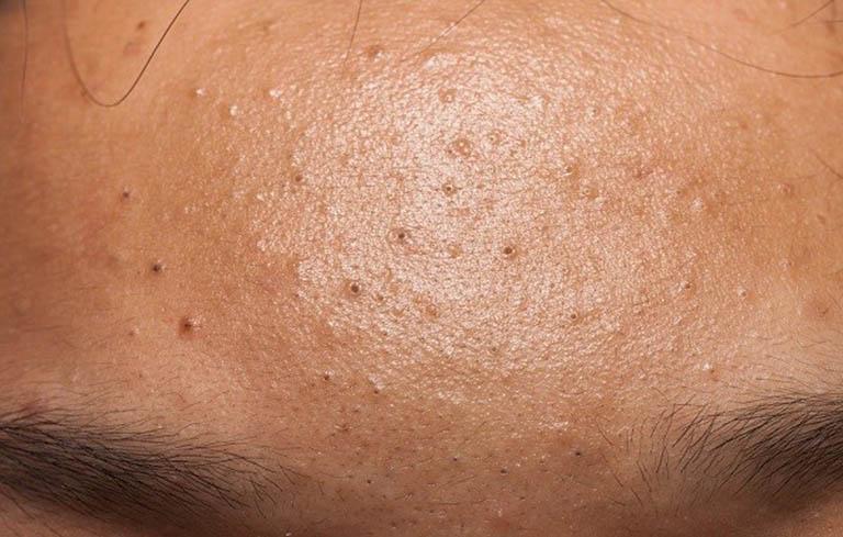 Những người có cơ địa da dầu thường có nguy cơ bị mụn khá cao