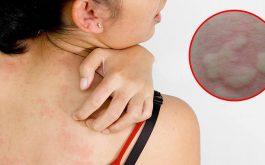 BS.Đỗ Minh Tuấn chỉ 5 lưu ý khi điều trị nổi mề đay sau sinh mổ sản phụ cần biết