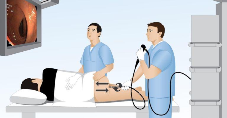 Bệnh nhân cần nội soi đại tràng để xem có thể loại trừ các bệnh lý khác không
