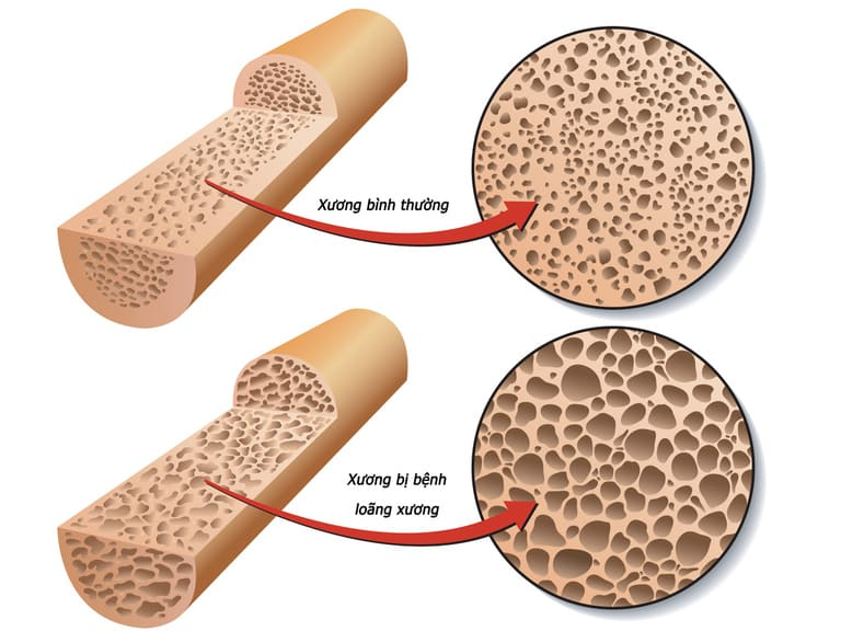 Lạm dụng steroid hoặc dùng sai cách loại thuốc giảm đau này có thể gây loãng xương và yếu cơ