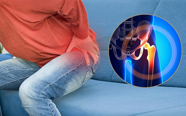 Dấu hiệu thoái hóa khớp háng điển hình là những cơn đau