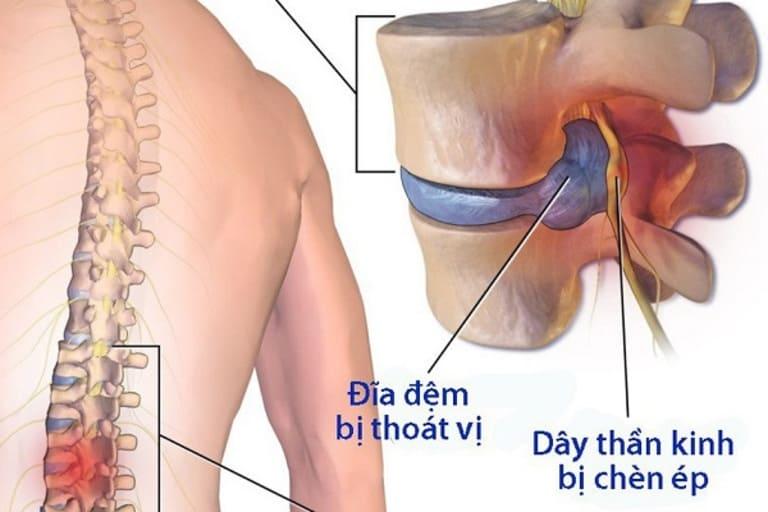Thoát vị đĩa đệm cột sống thắt lưng nếu không luyện tập rất dễ bị cứng cơ và thoái hóa khớp