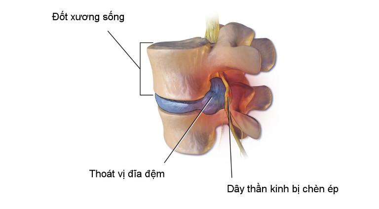 Thoát vị đĩa đệm là tình trạng đĩa đệm ở giữa hai đốt sống bị lệch vị trí, chèn ép dây thần kinh tủy sống, gây đau buốt.