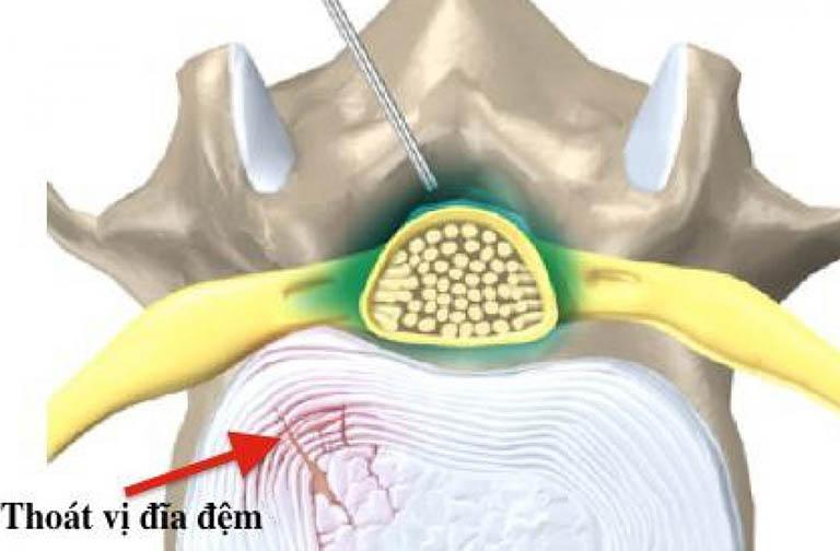 Ưu điểm của phương pháp tiêm ngoài màng cứng trị thoát vị đĩa đệm