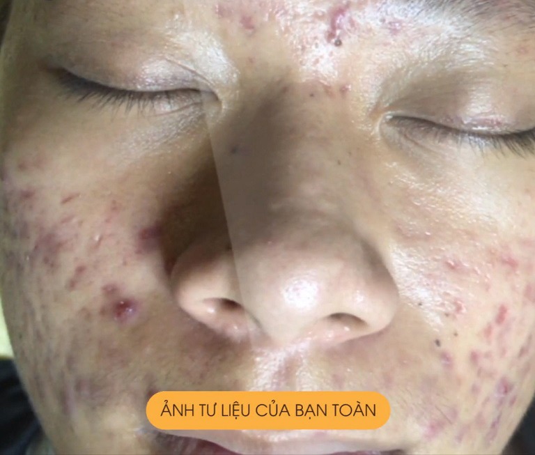 Tình trạng da của bạn Đặng Công Toàn trước khi điều trị