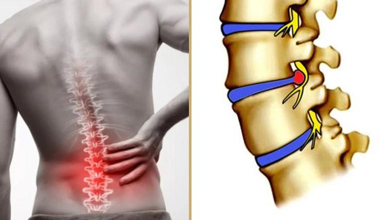 Đau nhức là tình trạng không thể tránh khỏi khi bị thoát vị đĩa đệm. Mức độ đau nhiều ít phụ thuộc vào mức độ bị chèn ép của rễ dây thần kinh