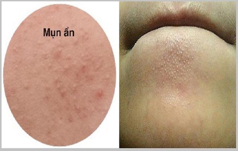 Mụn ẩn nằm sâu dưới da, tuy không tổn thương nặng nhưng cũng rất khó điều trị