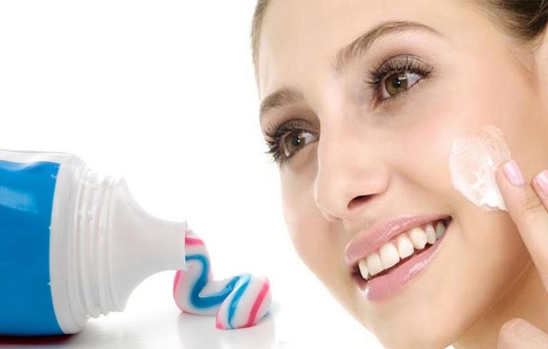 Trị mụn tại nhà bằng kem đánh răng hiệu quả