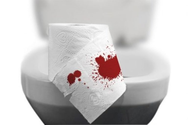Chảy máu hậu môn là dấu hiệu thường gặp của bệnh trĩ nội. Đây đồng thời cũng là căn cứ để nhận biết tình trạng bệnh