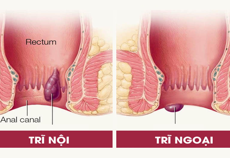 Đặc điểm của bệnh trĩ nội và bệnh trĩ ngoại