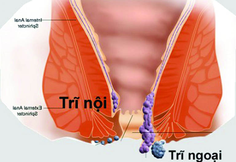 Tiến trình phát triển của bệnh trĩ nội và bệnh trĩ ngoại