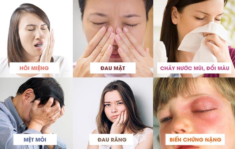 Các triệu chứng viêm xoang mãn tính gây ảnh hưởng đến sức khỏe
