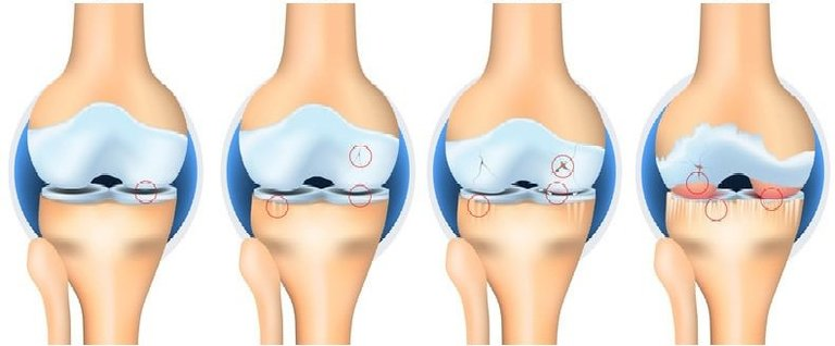 Ở mức độ nhẹ, người bị thoái hóa khớp gối có thể chữa khỏi hoàn toàn bệnh bằng công nghệ tế bào gốc