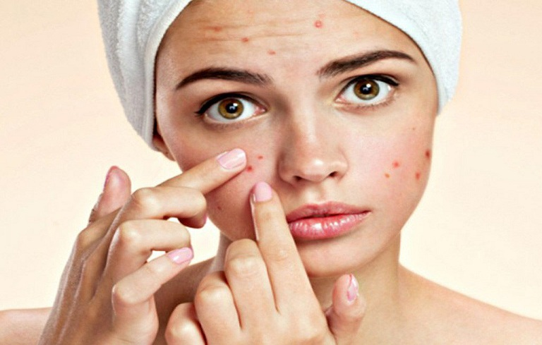 Mụn phá hủy cấu trúc da, để lại nhiều thâm sẹo gây mất thẩm mỹ