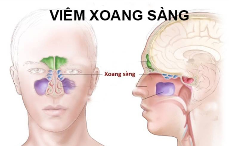 Vị trí xoang sàng trên khối sọ mặt