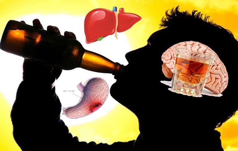 Viêm da dị ứng cần kiêng rượu bia, chất kích thích