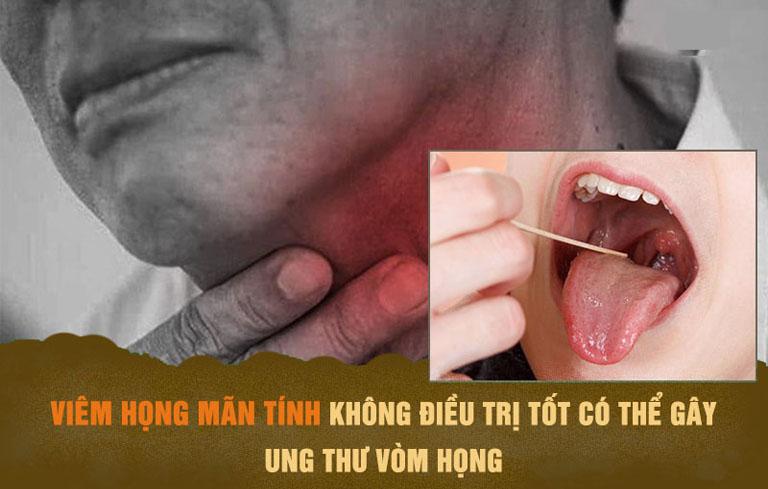 Bệnh nếu không được điều trị tốt dễ gây biến chứng nguy hiểm