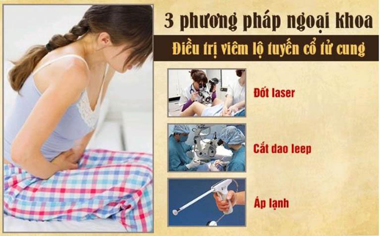 Nên lưu ý trước khi lựa chọn cắt, dao leep, đốt điện,...chữa bệnh viêm lộ tuyến cổ tử cung