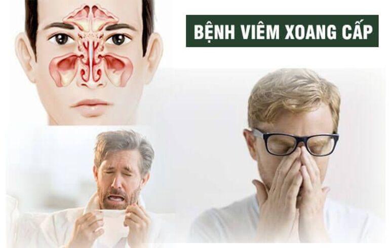 Viêm xoang cấp là tình trạng bệnh hô hấp thường gặp