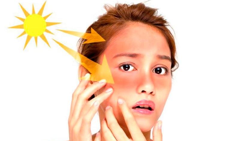 Nguyên nhân gây nám da do sự tác động của ánh nắng mặt trời