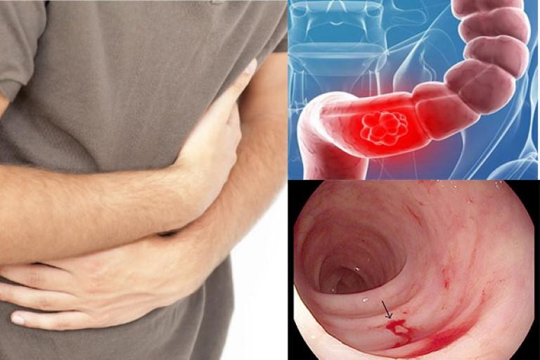 Đau vùng bụng dọc khung đại tràng và dính máu trong phân là những triệu chứng điển hình