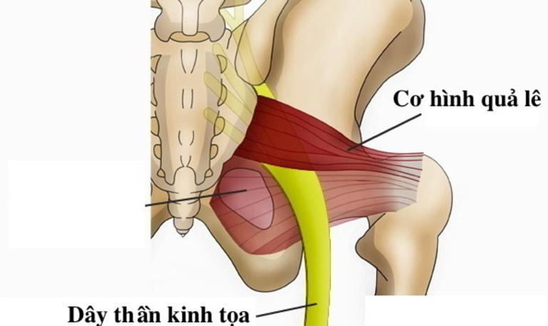 Vị trí của cơ tháp bắt chéo qua dây thần kinh tọa. Luyện tập cơ này có thể giảm được tình trạng đau nhức.