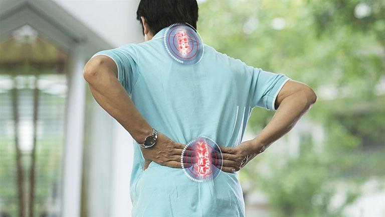 Một số bài thuốc chữa xẹp đốt sống lưng từ thảo dược