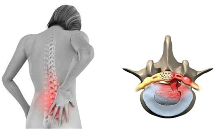 Thoát vị đĩa đệm là một trong những bệnh về xương khớp thường gặp gây đau nhức lưng gần mông.