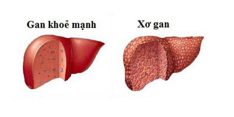 Nếu không được chữa trị, bệnh sỏi gan có thể gây xơ gan, nặng hơn là ung thư gan