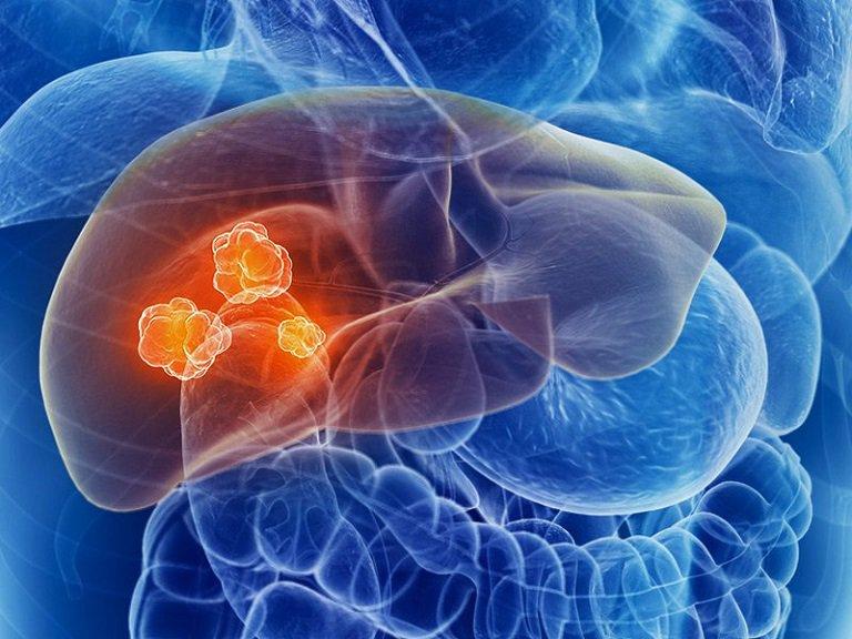 Ung thư gan là một trong những biến chứng nguy hiểm của bệnh sỏi gan