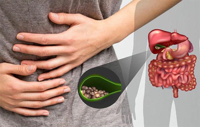 Đau bụng là triệu chứng điển hình của bệnh
