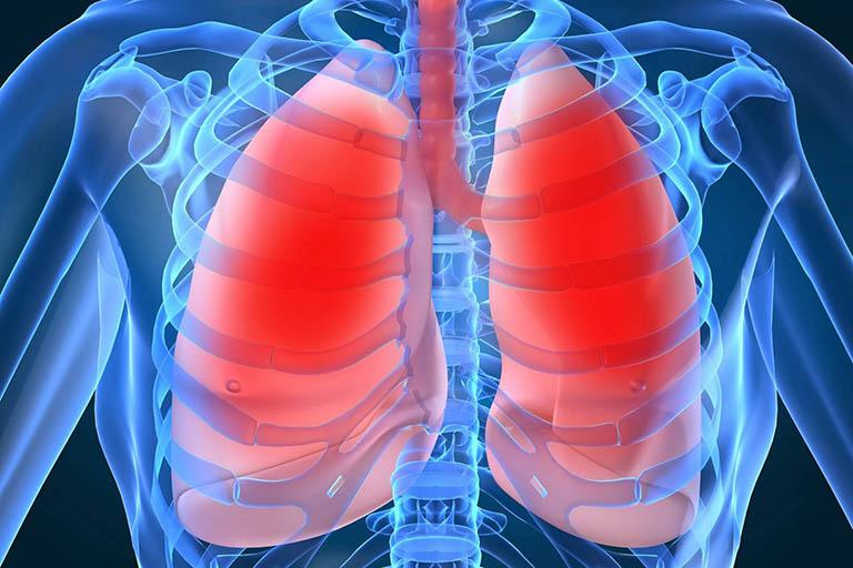 Bệnh về phổi
