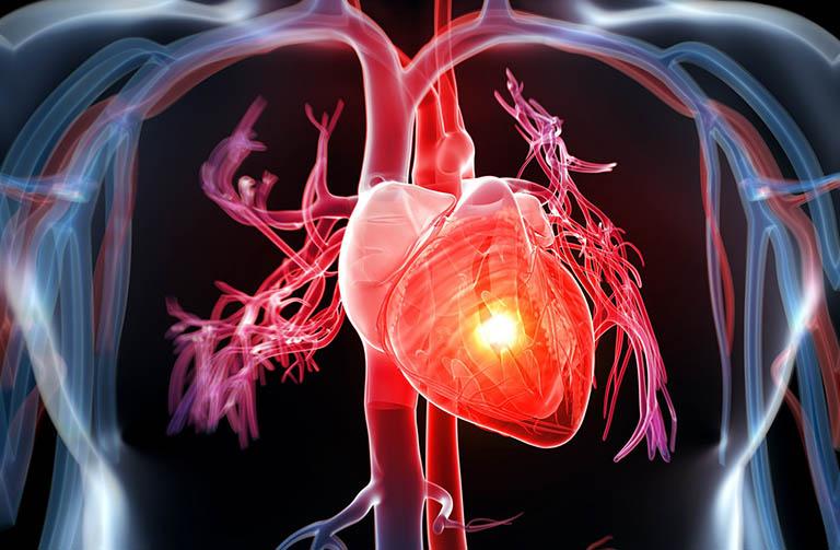 Vấn đề về tim mạch