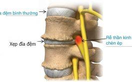 Xẹp đĩa đệm cột sống lưng là một trong những bệnh lý về xương khớp rất thường gặp. Đối tượng mắc bệnh này đang có xu hướng trẻ hóa.