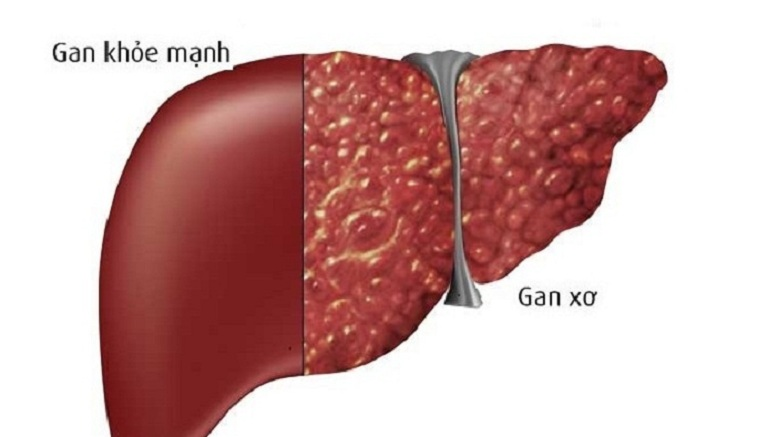 Bệnh xơ gan cổ trướng là giai đoạn cuối của bệnh xơ gan