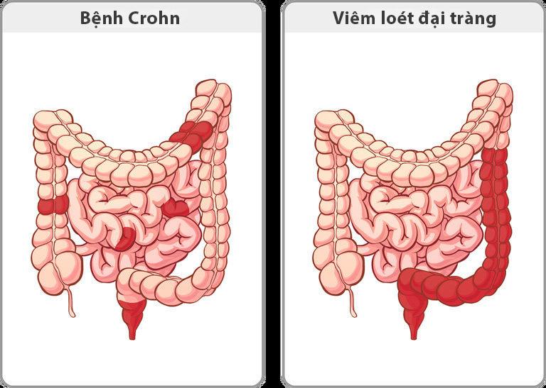 So sánh bệnh Crohn và bệnh viêm loét đại tràng